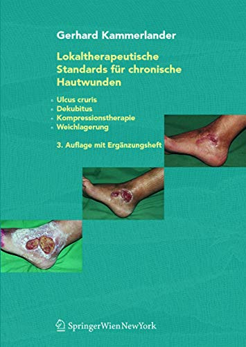 9783211224724: Lokaltherapeutische Standards für chronische Hautwunden: Ulcus cruris - Dekubitus - Kompressionstherapie - Weichlagerung (German Edition)