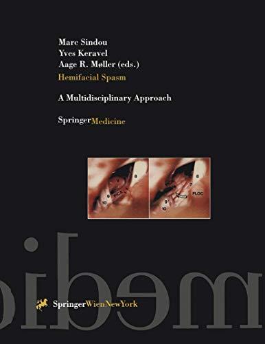 9783211827925: A Hemifacial Spasm: A Multidisciplinary Approach