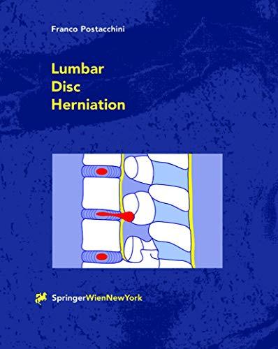 Lumbar Disc Herniation: FRANCO POSTACCHINI