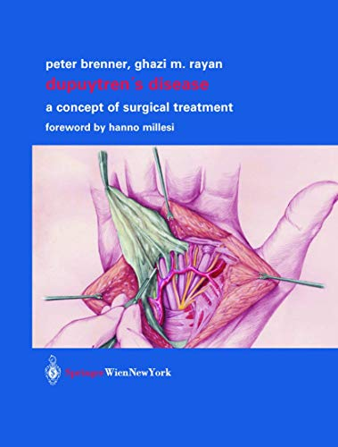 Dupuytren's Disease: A Concept of Surgical Treatment: Peter Brenner