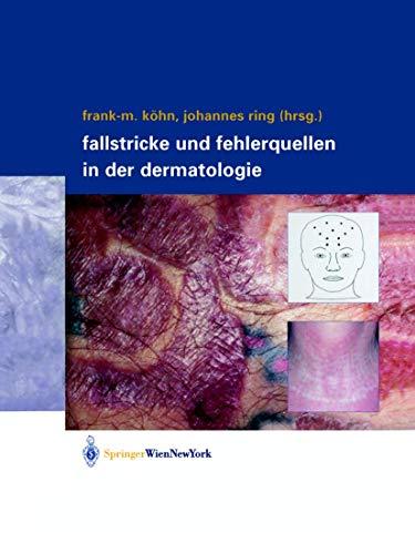 9783211838174: Fallstricke und Fehlerquellen in der Dermatologie (German Edition)