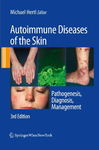Autoimmune Diseases of the Skin: Pathogenesis, Diagnosis, Management (Hardcover)