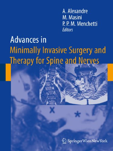 Advances in Minimally Invasive Surgery and Therapy for Spine and Nerves: Alberto Alexandre