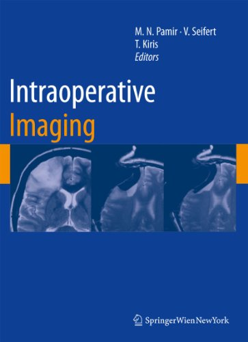 Intraoperative Imaging: M. Necmettin Pamir