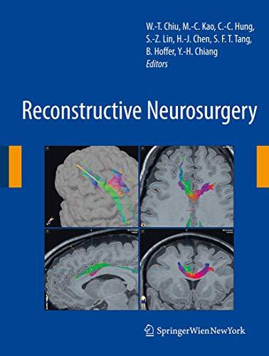 Reconstructive Neurosurgery: Wen-Ta Chiu