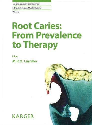 Root Caries: From Prevalence to Therapy (Hardback)