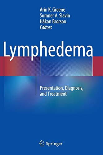 9783319144924: Lymphedema: Presentation, Diagnosis, and Treatment
