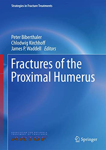 9783319202990: Fractures of the Proximal Humerus (Strategies in Fracture Treatments)