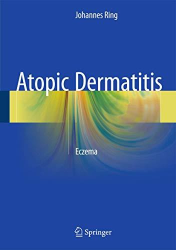 9783319222424: Atopic Dermatitis