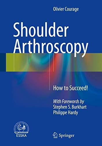 9783319236476: Shoulder Arthroscopy: How to Succeed!