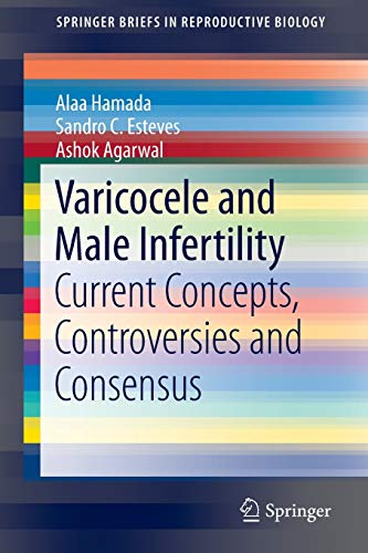 9783319249346: Varicocele and Male Infertility: Current Concepts, Controversies and Consensus (SpringerBriefs in Reproductive Biology)