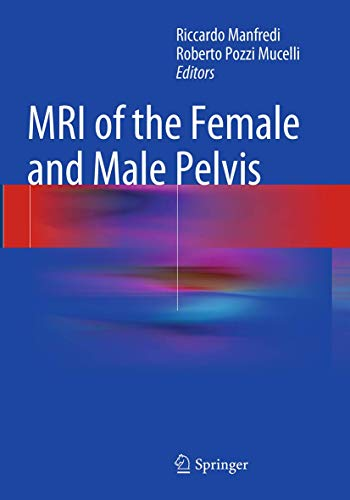 9783319355597: MRI of the Female and Male Pelvis