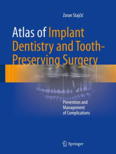9783319421223: Atlas of Implant Dentistry and Tooth-Preserving Surgery: Prevention and Management of Complications