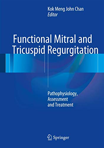 9783319435084: Functional Mitral and Tricuspid Regurgitation: Pathophysiology, Assessment and Treatment