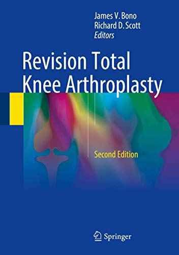 Revision Total Knee Arthroplasty: James V. Bono