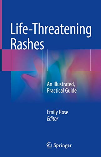 Life-Threatening Rashes. An Illustrated, Practical Guide.: Rose, E.: