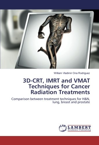 3D-CRT, IMRT and VMAT Techniques for Cancer: Ona Rodriguez, William