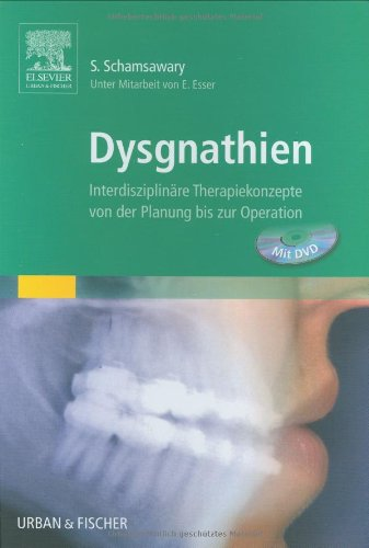 9783437056208: Dysgnathien: Interdisziplin�re Therapiekonzepte von der Planung bis zur Operation