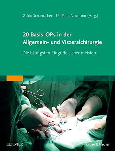 20 Basis-OPs in der Allgemein- und Viszeralchirurgie: Guido Schumacher