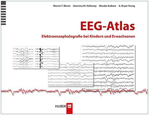 EEG-Atlas: Warren T. Blume