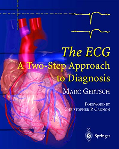 9783540008699: The ECG: A Two-Step Approach to Diagnosis