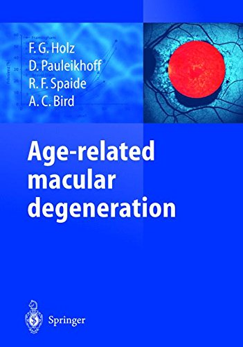 age related macular degeneration essay