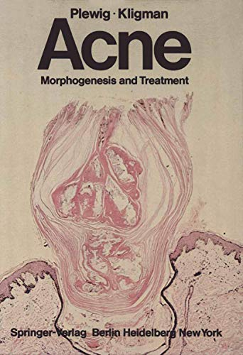 9783540072126: Acne: Morphogenesis and Treatment
