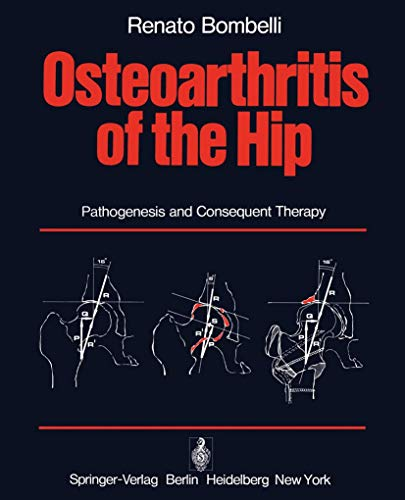 9783540078425: Osteoarthritis of the Hip: Pathogenesis and Consequent Therapy