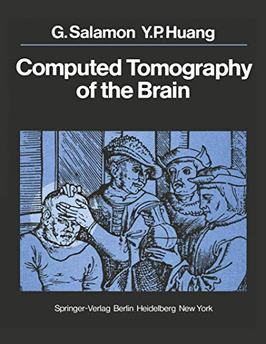 9783540088257: Computed Tomography of the Brain: Atlas of Normal Anatomy