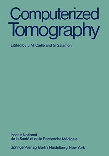 9783540098089: Computerized Tomography