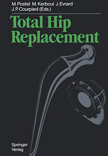 9783540131984: Total Hip Replacement