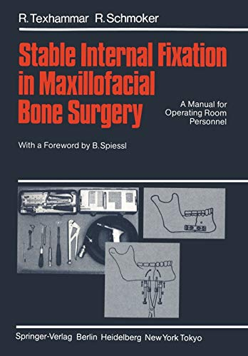 9783540135937: Stable Internal Fixation in Maxillofacial Bone Surgery: A Manual for Operating Room Personnel