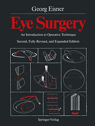 9783540174073: Eye Surgery: An Introduction to Operative Technique
