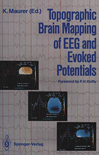 9783540178026: Topographic Brain Mapping of EEG and Evoked Potentials