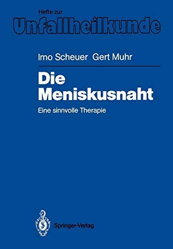 Die Meniskusnaht: Scheuer, Imo ; Muhr, Gert