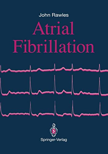 9783540196990: Atrial Fibrillation
