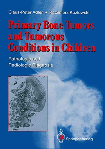 9783540197317: Primary Bone Tumors and Tumorous Conditions in Children: Pathologic and Radiologic Diagnosis