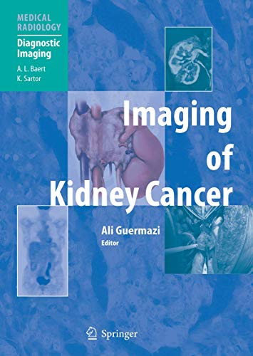 9783540211297: Imaging of Kidney Cancer (Medical Radiology)