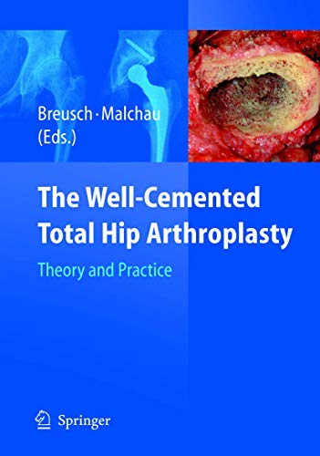 9783540241973: The Well-Cemented Total Hip Arthroplasty: Theory and Practice