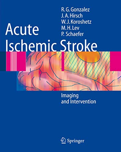 9783540252641: Acute Ischemic Stroke: Imaging And Intervention