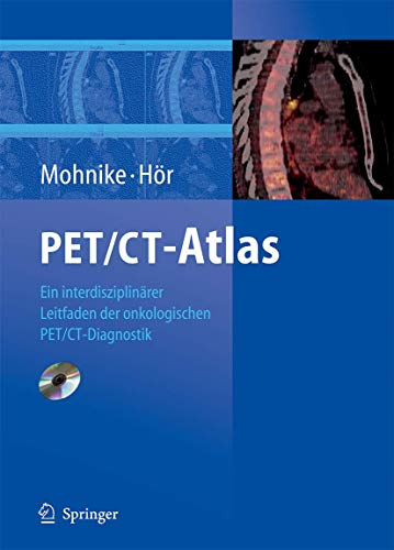 9783540312147: PET/CT-Atlas: Ein interdisziplinärer Leitfaden der onkologischen PET/CT-Diagnostik (German Edition)