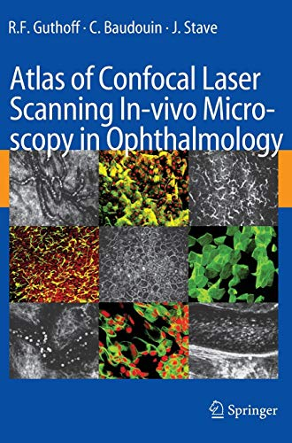 9783540327059: Atlas of Confocal Laser Scanning In-vivo Microscopy in Ophthalmology