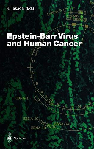 9783540415060: Epstein-Barr Virus and Human Cancer (Current Topics in Microbiology and Immunology)
