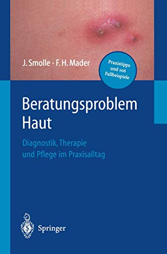 9783540417064: Beratungsproblem Haut: Diagnostik, Therapie Und Pflege Im Praxisalltag