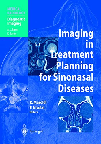 9783540423836: Imaging in Treatment Planning for Sinonasal Diseases (Medical Radiology)
