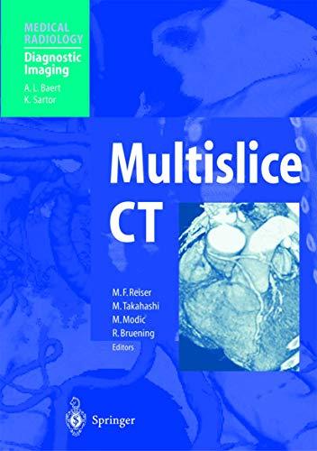 9783540431244: Multislice CT