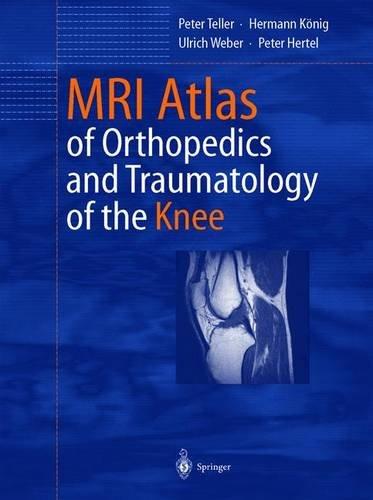 9783540440345: MRI Atlas of Orthopedics and Traumatology of the Knee