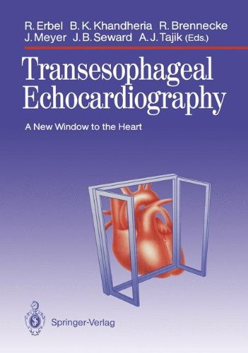 9783540505075: Transesophageal Echocardiography: A New Window to the Heart