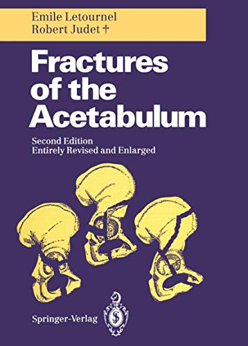 9783540521891: Fractures of the Acetabulum