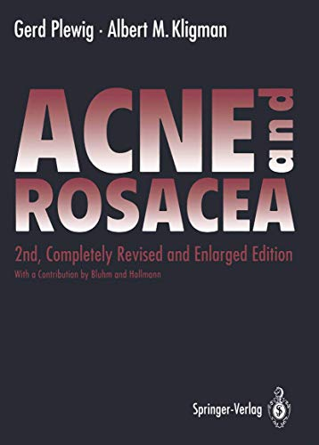 9783540522775: ACNE and ROSACEA